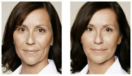 Kvinna före och efter behandling med Restylane