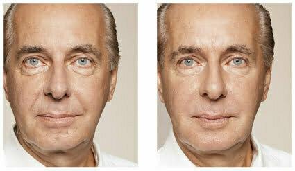 Man före och efter behandling av rynkor med Restylane