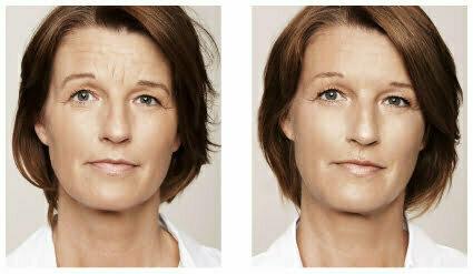 Rynkor behandling med Restylane, före och efter